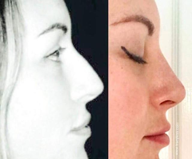 Mũi của Tracy trước và sau khi chỉnh sửa. Ảnh: Tracy Kiss.
