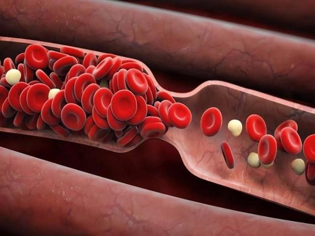 Chuyên gia chia sẻ cách làm sạch rác trong mạch máu: Việc làm nhỏ giúp ngăn ngừa tử vong - Ảnh 1.