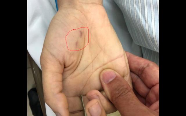 Vết thương chó cắn bàn tay phải của chị C