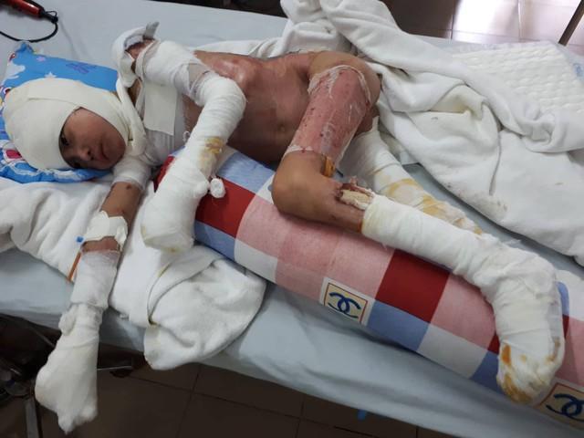 Cháu Đồng đã trải qua 10 lần phẫu thuật cấy ghép da. Ảnh PT