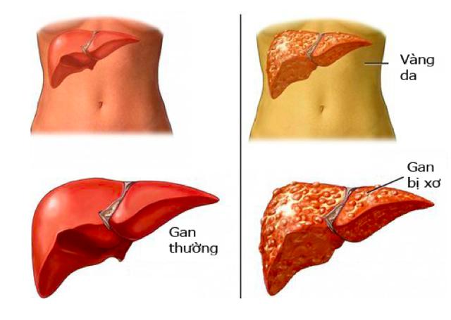 Bệnh lý về gan ngày một gia tăng