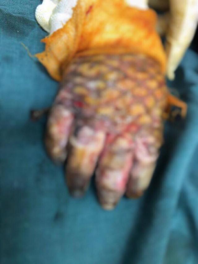 Bàn tay bé cũng bỏng hết. BSCC