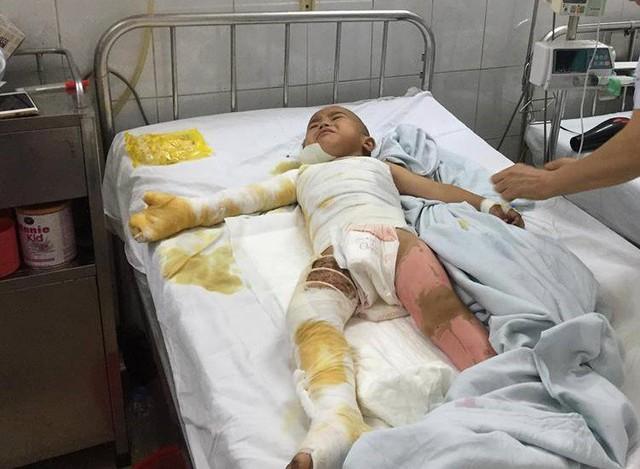 Tới đây bé Sâng cần được phẫu thuật tiếp nhưng gia đình quá khó khăn