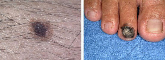 Chuyên gia hướng dẫn cách kiểm tra nốt ruồi trên cơ thể có khả năng gây ung thư hay không - Ảnh 5.