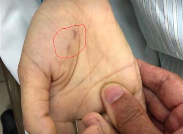 Vết chó dại cắn nữ bác sĩ thú y tại Phú Thọ. Ảnh: TL