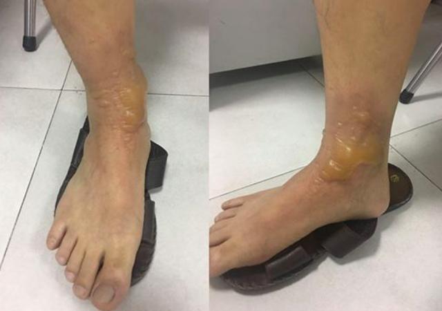 Hình ảnh chân bệnh nhân L.T.Đ bị bỏng sau khi massage. Ảnh: BVCC