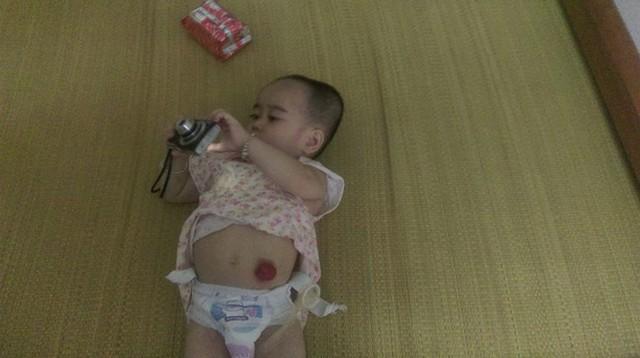 Cuộc sống phía trước của bé Dương vẫn còn gặp nhiều khó khăn. Ảnh Ngọc Thi