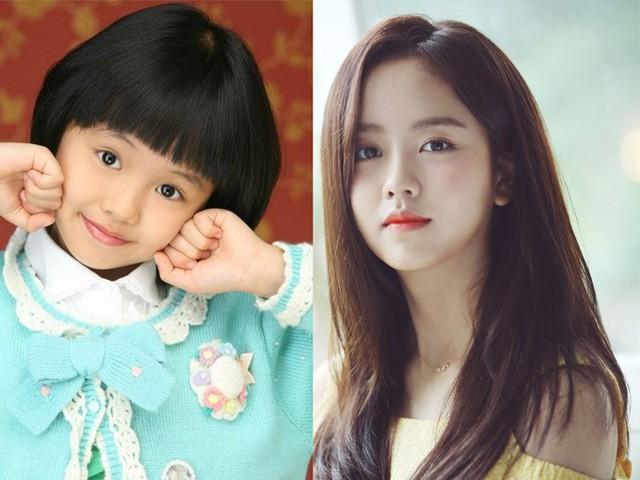 """Kim So Huyn ra mắt khán giả lần đầu thông qua bộ phim Happy Woman năm 2007 khi mới 9 tuổi, lập tức được mọi người gọi yêu với cái tên """"Son Ye Jin nhí"""". Vì quá đam mê diễn xuất nên khi lên cấp 2, So Huyn đã xin phép gia đình cho phép tự học ở nhà để có thể dành nhiều thời gian theo đuổi nghệ thuật. Sau nhiều nỗ lực, chăm chỉ đóng phim, mỹ nhân nhận được nhiều lời khen từ giới chuyên môn. Năm 2015, với màn thể hiện xuất sắc vai nữ chính trong tác phẩm học đường đình đám School 2015, So Huyn chiến thắng giải """"Nữ diễn viên mới xuất sắc"""" tại Lễ trao giải KBS Drama Awards. Tài năng không giới hạn của cô còn được thể hiện trong nhiều lĩnh vực khác như người mẫu, MC... Năm 2018, sau tác phẩm truyền hình Chuyện tình radio hợp tác cùng tài tử Yoon Doo Joon, So Huyn chưa tham gia thêm dự án nào."""