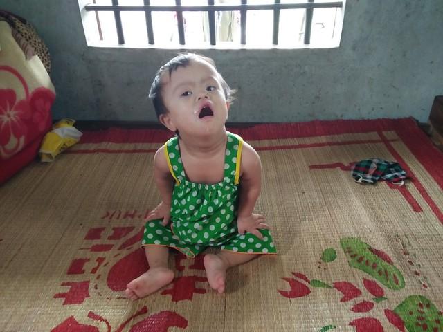 4 tuổi, nhưng Hiền cùng lúc gánh hai căn bệnh hiểm nghèo là tim bẩm sinh và bệnh Down. Ảnh: Hoa Thạch
