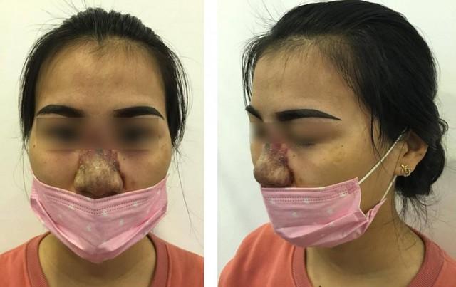 Một bệnh nhân bị biến chứng sau khi tiêm filler nâng mũi. Ảnh: TL