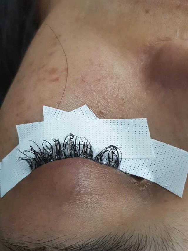 Cô gái đau đớn lĩnh hậu quả với đôi mắt sưng húp, rụng sạch lông mi vì nối mi bằng keo dán sắt