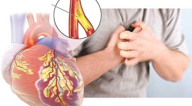 Chuyên gia chỉ rõ những thói quen giúp người trẻ tránh xa bệnh tim mạch