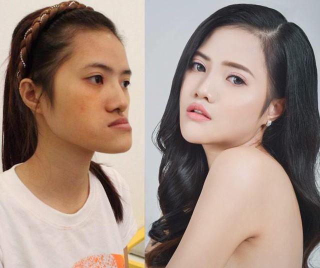 Hoàng Hiên - một cô gái thoát kiếp mặt lưỡi cày nhờ thẩm mỹ