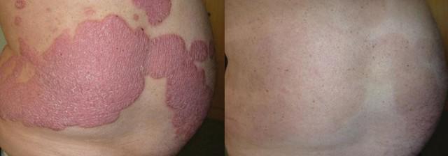 Hình ảnh bệnh vẩy nến trước và sau 8 tuần sử dụng sản phẩm Dr Michaels® (Soratinex®)