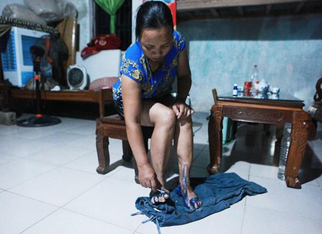 Bà Nguyễn Thị Sáu bị nước ăn chân nặng, phần kẽ chân và lòng bàn chân đau xót không thể đi lại. Nước rút khỏi nhà, dọn dẹp xong cả gia đình bà ngồi bôi thuốc tím để sát khuẩn khử trùng.