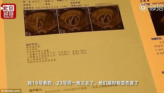 Kết quả siêu âm hôm 23/7 cho thấy bà Zhang đang mang thai đôi. Ảnh: Btime.