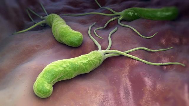 H. pylori gây ra tình trạng khó tiêu, đầy bụng, viêm nhiễm... làm bệnh dạ dày nặng hơn và là tiền đề của ung thư dạ dày.