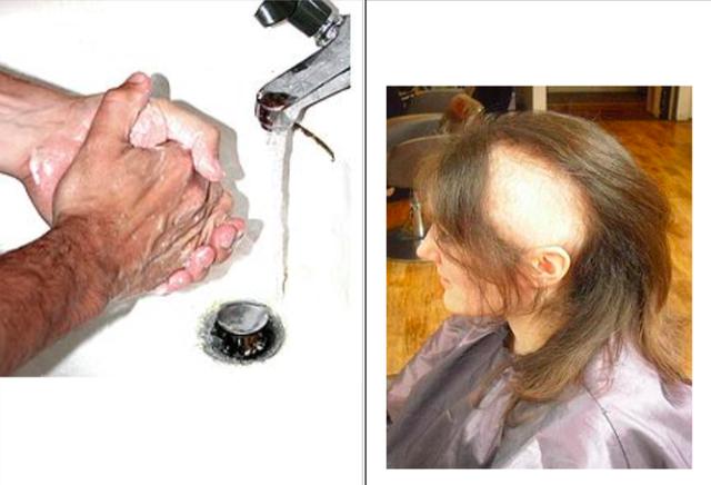 Rửa tay, nhổ tóc liên tục là dấu hiệu chỉ điểm của rối loạn ám ảnh cưỡng bức. Ảnh: TL