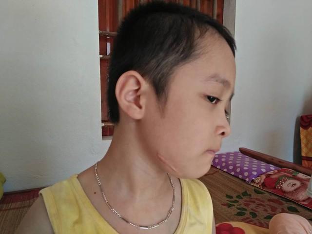 Một trong những vết sẹo để lại sau ca phẫu thuật giành giật sự sống của bé Vinh