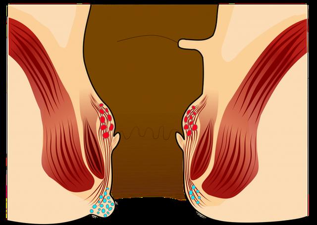 4 triệu chứng sớm rõ ràng nhất của ung thư trực tràng: Đừng để phát hiện bệnh khi đã muộn - Ảnh 5.