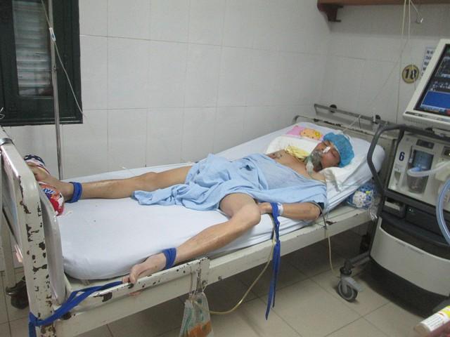 Anh Nguyễn Văn Thái đang được điều trị tại bệnh viện. Hiện anh đã qua cơn nguy kịch nhưng sẽ phải tiến hành ghép sọ thời gian tới. Ảnh: Ngọc Thi