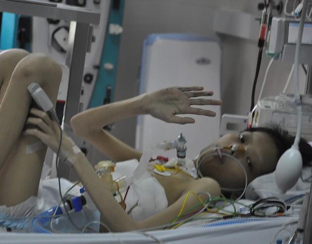 Bệnh nhân Nguyễn Văn Đức đang được điều trị tích cực tại Bệnh viện Việt Đức (ảnh: Dân Trí).