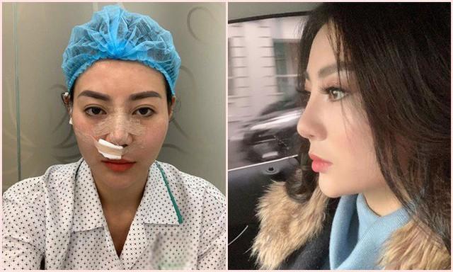 Loạt hình chụp cùng các diễn viên giờ Vàng VTV được Thanh Hương vừa chia sẻ cũng cho thấy gương mặt xinh đẹp trở nên thanh thoát hơn, trẻ hơn với sống mũi cao thấy rõ.