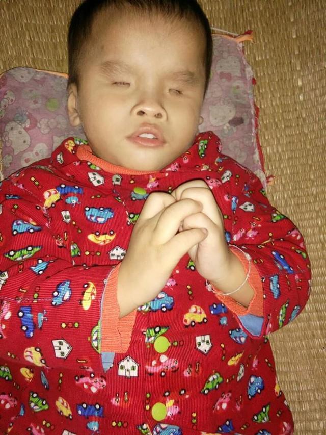 Bé Thiên bị dị tật mắt từ khi sinh