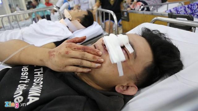 Nhiều người bị thương được đưa đi cấp cứu. Ảnh: Trương Khởi.