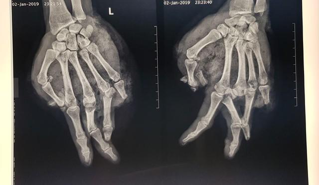 Bệnh nhân này suýt mất toàn bộ bàn tay chỉ vì thay bình gas mini