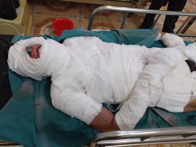 Tai nạn điện cao thế giật khiến anh Xôm bỏng nặng toàn thân