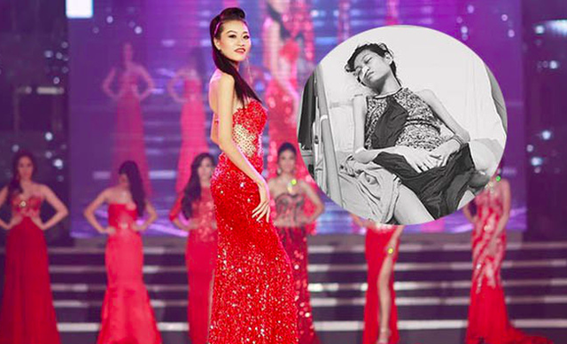 Nữ người mẫu Nguyễn Kim Anh (SN 1993, quê ở Nam Định) rực rỡ trên sân khấu và hình ảnh kiệt quệ trên giường bệnh vì ung thư buồng trứng