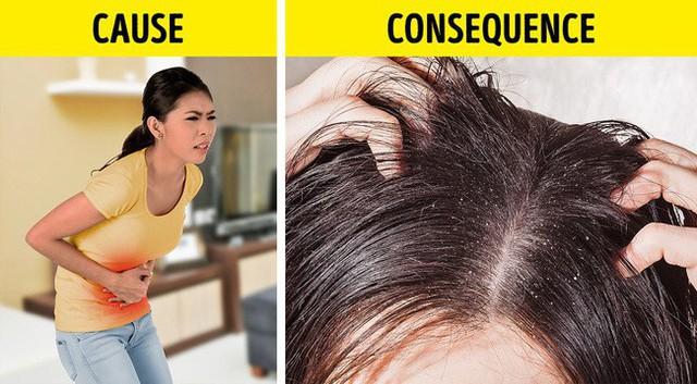 Nếu gặp các biểu hiện này ở tóc, hãy gặp bác sĩ vì rất có thể có điều gì đó không ổn trong cơ thể - Ảnh 3.
