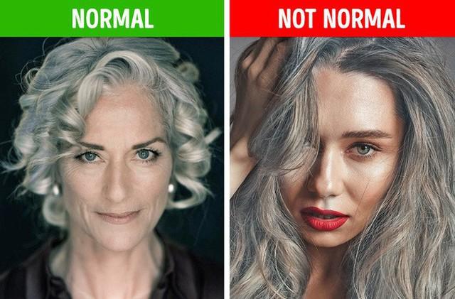 Nếu gặp các biểu hiện này ở tóc, hãy gặp bác sĩ vì rất có thể có điều gì đó không ổn trong cơ thể - Ảnh 7.