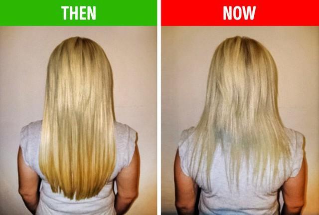Nếu gặp các biểu hiện này ở tóc, hãy gặp bác sĩ vì rất có thể có điều gì đó không ổn trong cơ thể - Ảnh 4.