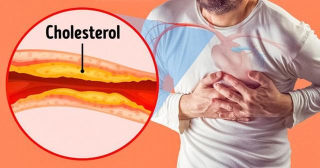 7 dấu hiệu tắc động mạch nguy hiểm mà chúng ta thường bỏ qua - Ảnh 2.