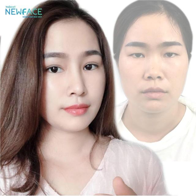 Viện Thẩm mỹ NEWFACE – điểm hội tụ của hàng ngàn Việt kiều sành điệu - Ảnh 3.