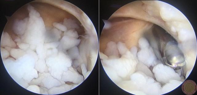 Bác sĩ ngạc nhiên gắp 200 hạt trân châu trắng sữa lổn nhổn trong khớp tay nam thanh niên Hà Nội  - Ảnh 1.