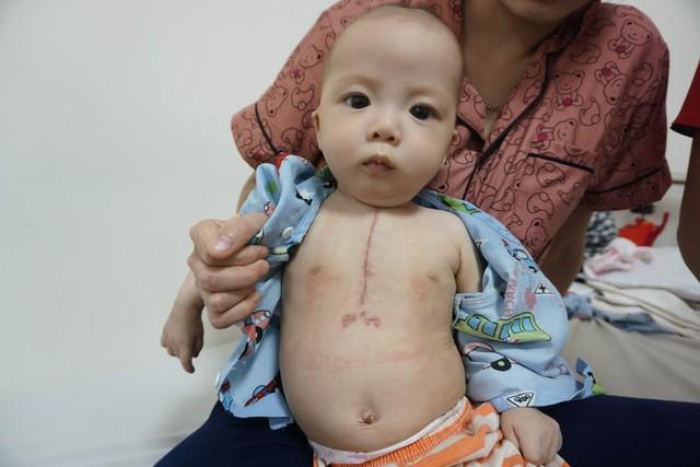 Bé trai dân tộc 7 tháng tuổi bị tim bẩm sinh sức khỏe ổn định hơn - Ảnh 2.