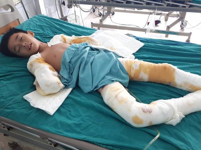 Mất đôi tay, cậu bé 12 tuổi bị điện giật chỉ mong giữ được đôi chân - Ảnh 2.