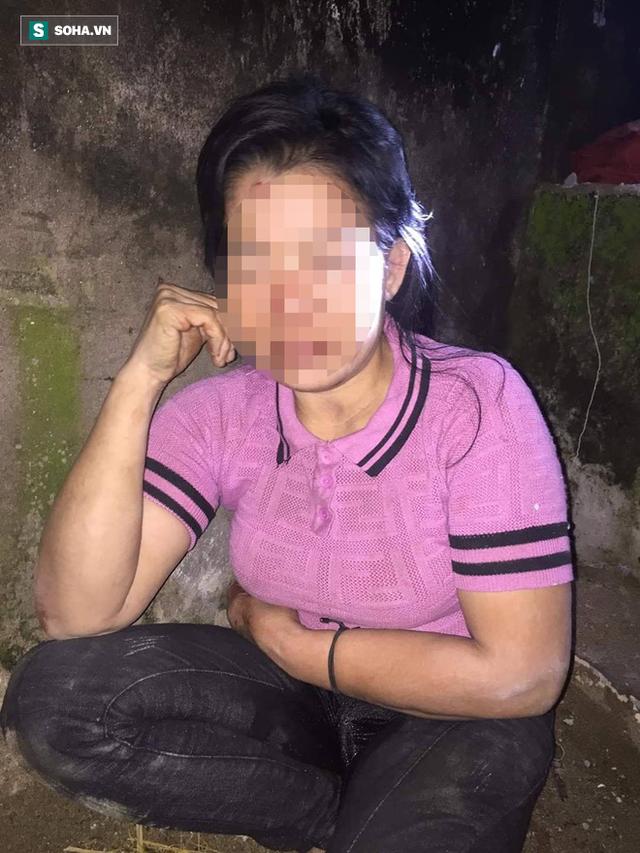 Một phụ nữ bị kẻ lạ đánh đập dã man vào vùng kín trong đêm - Ảnh 1.