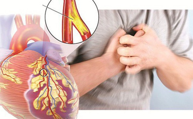 Chị em cần ghi nhớ dấu hiệu bệnh tim mạch nguy hiểm nhất nhiều người mắc - Ảnh 1.