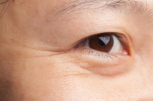 Bí quyết xóa ngay nếp nhăn vùng mắt hiệu quả mà mọi phụ nữ đều phải biết. - Ảnh 1.