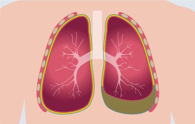 Sau khi đi massage châm cứu, cô gái 24 tuổi nhập viện và phát hiện phổi trái đã bị co lại 30% - Ảnh 2.