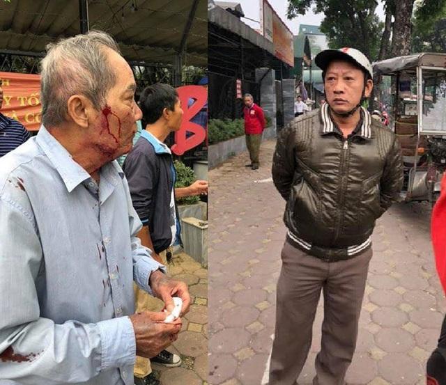 Hà Nội: Cụ ông 80 tuổi bị đánh dã man vì  nghi tranh địa bàn với xe ôm - Ảnh 1.