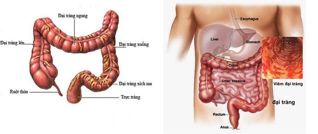 Dấu hiệu nhận biết bệnh viêm đại tràng mãn tính thường thấy - Ảnh 2.