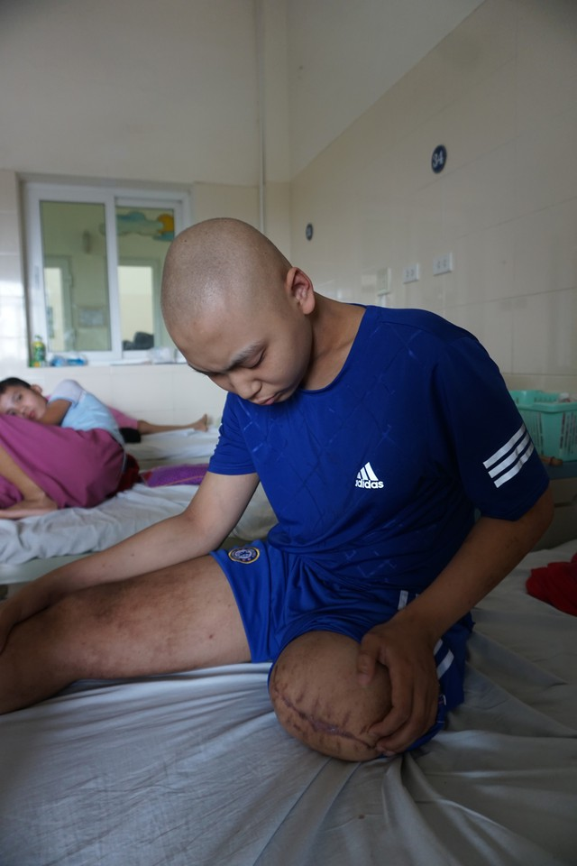Ước mơ có 30 triệu để lắp chân giả của cậu bé bị ung thư xương - Ảnh 2.