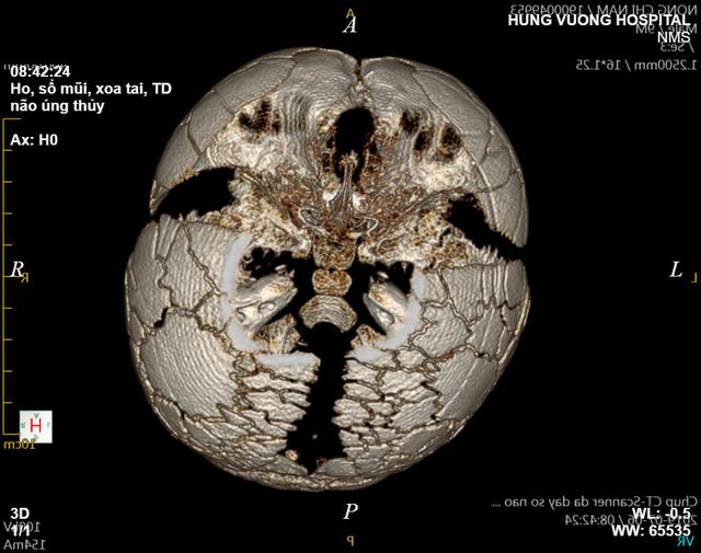 Bé trai 1 tuổi mắc bệnh cực hiếm, một vùng đầu không xương, 1 triệu ca mới có 1 - Ảnh 1.