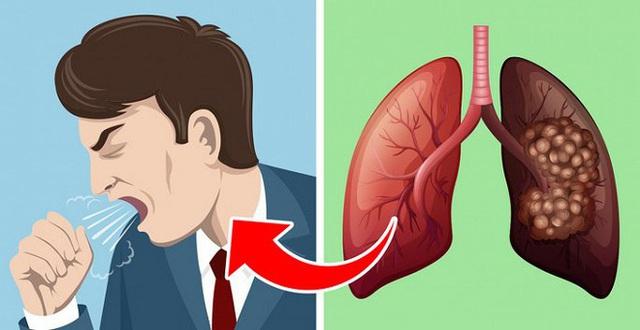 5 dấu hiệu của bệnh ung thư phổi nhiều người thường bỏ qua - Ảnh 2.