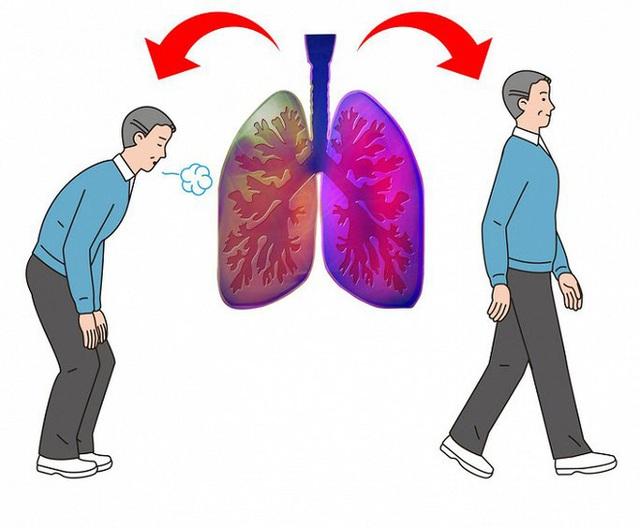 5 dấu hiệu của bệnh ung thư phổi nhiều người thường bỏ qua - Ảnh 3.